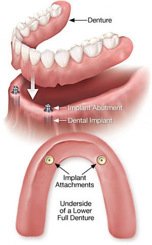 Implant-Overdentures_-Dr-Oneal-tlyer-tex