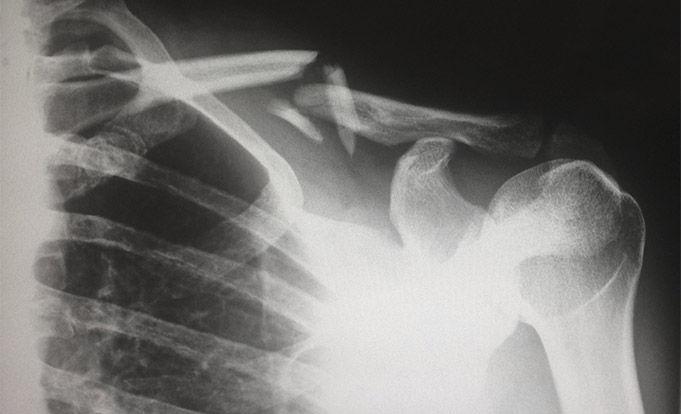 x ray of broken collarbone