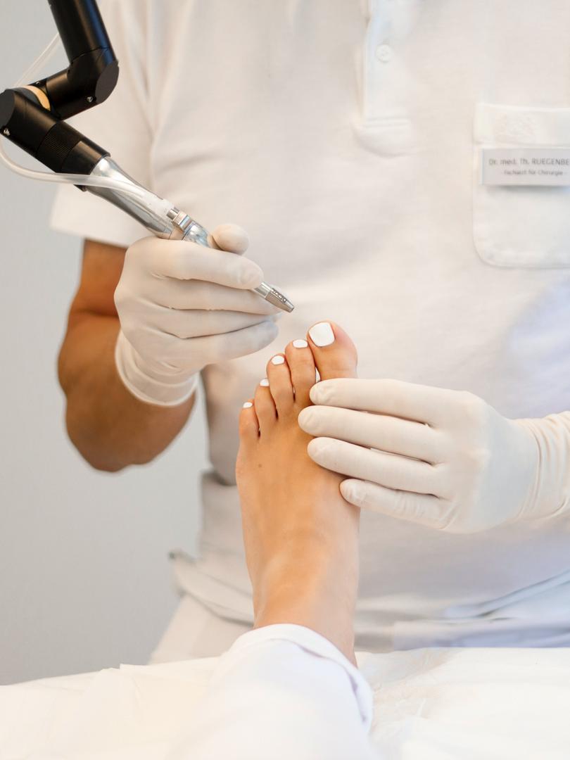 Laserbehandlung Fuß Unguis incarnatus