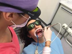 Sbiancamento Laser Doctor Smile