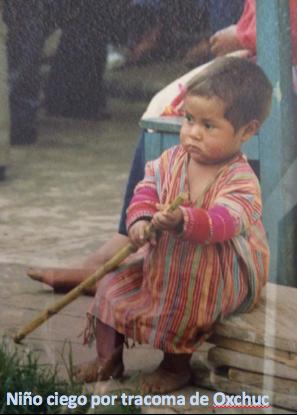 1991. Programa de Erradicación del Tracoma y Tifus en los Altos de Chiapas.