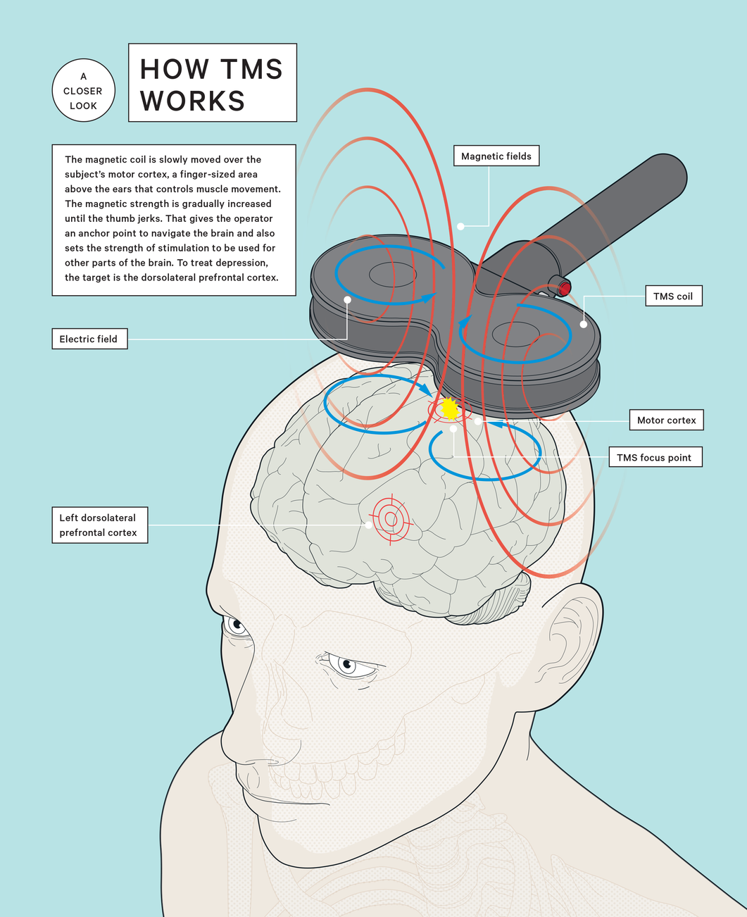 The Buzz Around Brain Stimulation | Transcranial Magnetic Stimulation