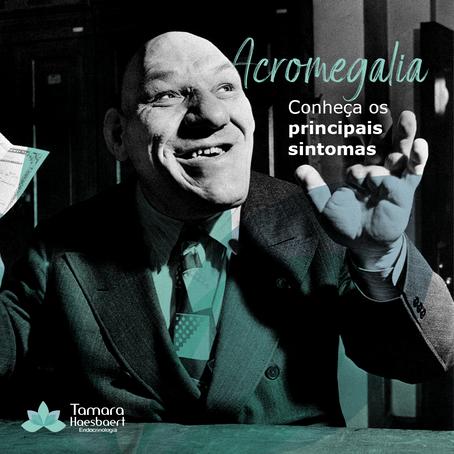 Acromegalia: Conheça os principais sintomas