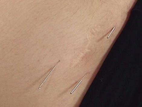 Acupuntura Redutora de Cicatriz