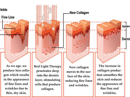 What is Red Light Rejuvenation?