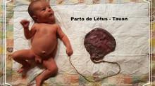 Conhece o parto lótus?