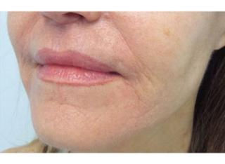 Donna Stockton MD | Infini After