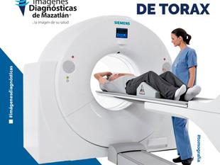 TOMOGRAFÍA DE TÓRAX