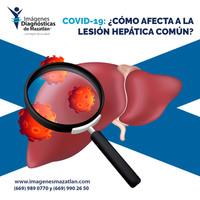 COVID-19: ¿CÓMO AFECTA A LA LESIÓN HEPÁTICA COMÚN?