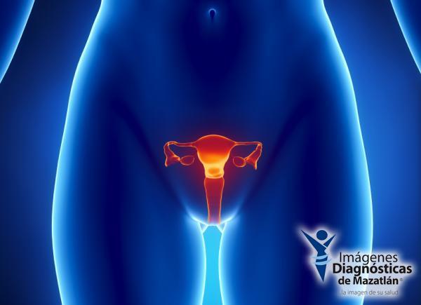 Ovarios, cáncer de ovarios, mujer