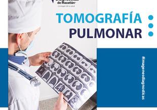 TOMOGRAFÍA PULMONAR