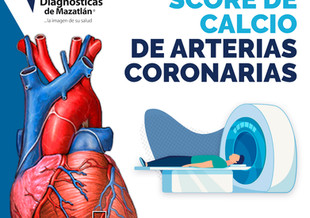 SCORE DE CALCIO DE ARTERIAS CORONARIAS