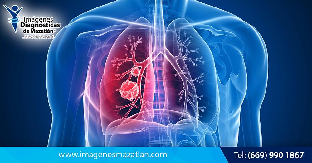 Profesiones y trabajos que pueden causar daños a los pulmones