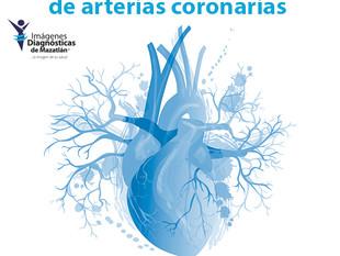 SCORE DE CALCIO Y ANGIOGRAFÍA DE ARTERIAS CORONARIAS