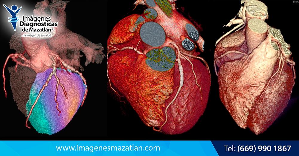 Estudios de prevención de Infarto Cardíaco