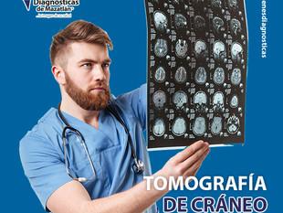 TOMOGRAFÍA DE CRÁNEO