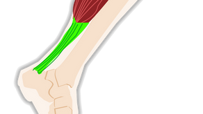 Achilles tendonitis - ouch!