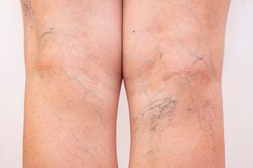 pernas-femininas-com-varizes-e-aranhas-n