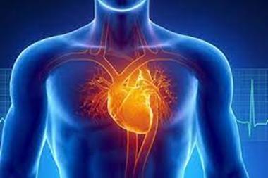 """What is a """"Cardiac"""" Diet?"""