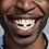 Thumbnail: Tooth Tabs Sample