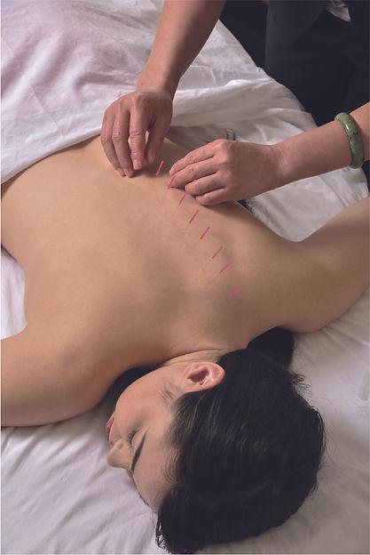 acupuntura_karinavolpe.jpg