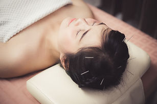 Woman in an acupuncture therapy at the h
