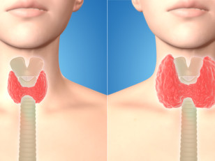 WHAT YOUR DOCTOR DOESN'T KNOW ABOUT THYROID DISEASE