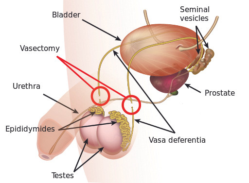 This image provides a visual of the male reproductive system showing the continuation from the testes (which are contained within the scrotum) up through the vas deferens and out the urethra. Each vas deferens is cut and sealed in order to prevent sperm from incorporating into the male's semen. (K.D. Schroeder/Wikimedia Commons)