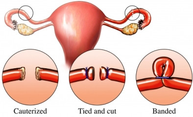 This image depicts the three different methods that could be used when performing a tubal ligation. The first is a cauterization in which the tubes are cut and then the ends are burned to prevent bleeding and promote healing. In the second, the tubes are simply cut and each end is tied to seal it closed. The third method involved no cutting of the tubes, but rather a small section is gathered and a tight band is placed around it to seal off any openings in the tube. (Nucleus Medical Media, Inc)