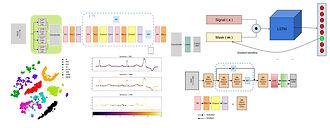Deep Learning for Arrhythmia Classificat