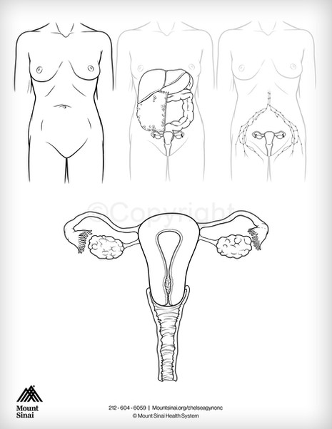 Female Reproductive Health - Gynecologic Oncology