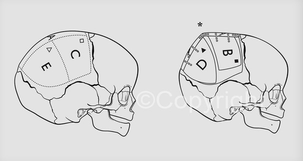 Craniosynostosis Repair Method