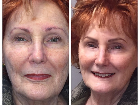 Take a look at Carmen!  A microblading before and after success story!