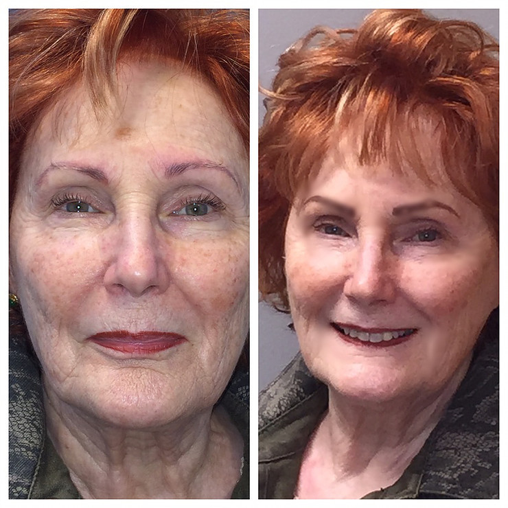 microblading before and after example image