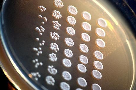Saccharomyces_cerevisiae.jpg