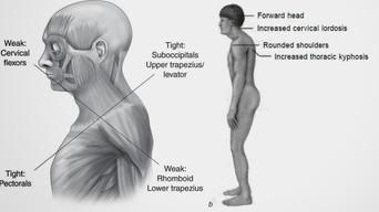 Disbalance Muscular y Control Motor-Vladimir Janda