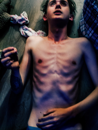 """Skin Bones"" by Lily Lilac"