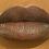 Thumbnail: Kinky