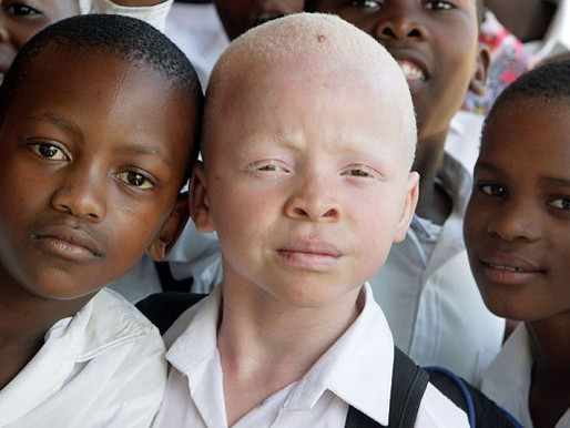 THE RESONANCE OF ALBINISM