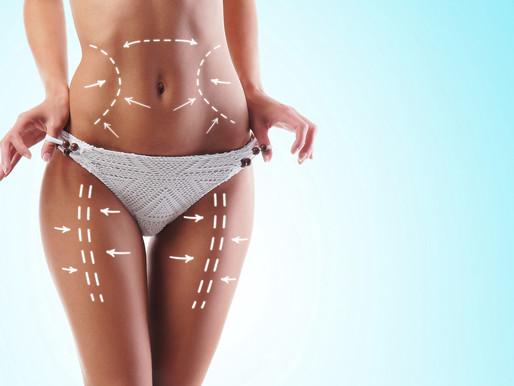 """¿Qué deberías saber sobre Liposucción de Definición Muscular o """"Lipo HD""""?"""