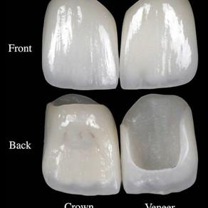 Crowns vs Veneers