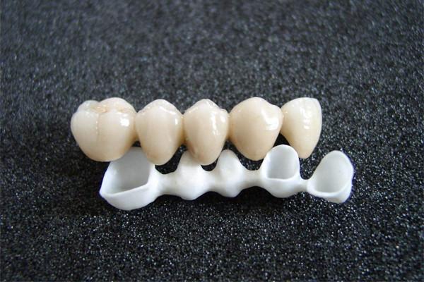 二氧化锆全瓷牙