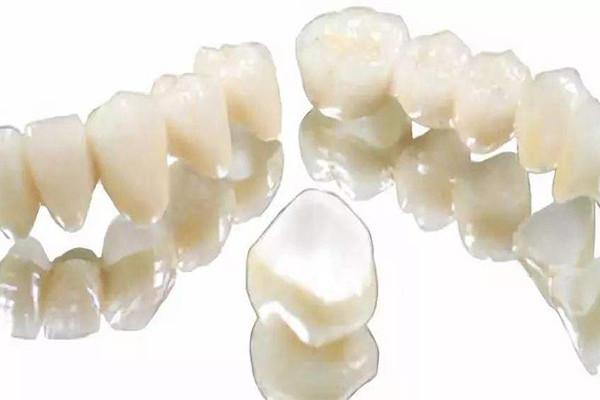 氧化锆全瓷牙