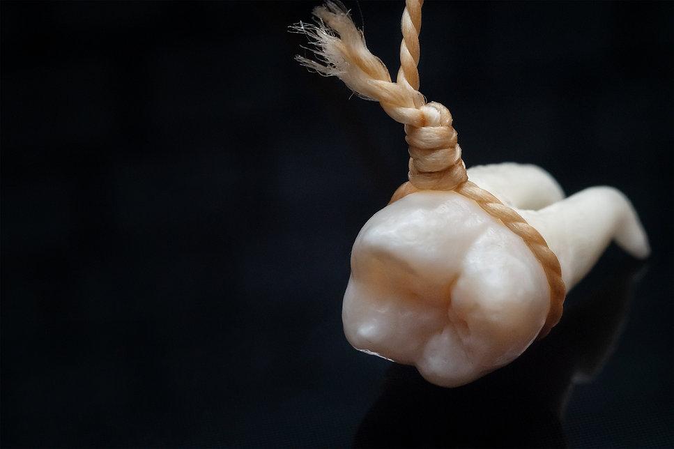 A wisdom tooth.jpg