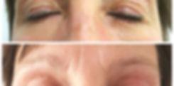 Hangende oogleden - voor en na