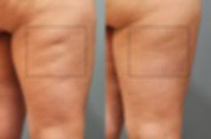 Bindweefselmassage cellulite