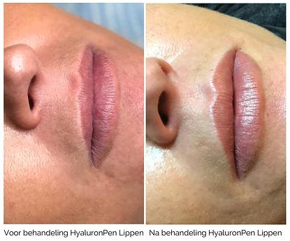 HyaluronPen Lippen.png