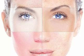 Huidanalyse advies over uw huid