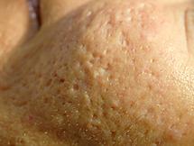 Slechte huidstructuur