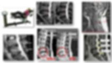 Premier-Pearland-MRI-Spinal-Decompressio